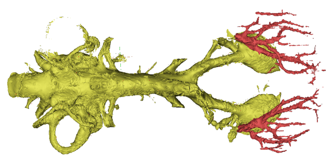 "Endocast of a ""chirodipterid"" lungfish in dorsal view"